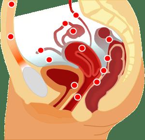 Loc.Endometriosis